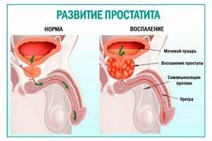 Диффузная гиперплазия предстательной железы - что это такое?