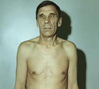 Атрофия надпочечников: причины, симптомы и лечение