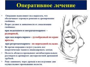 Фибролипома молочной железы - причины, симптомы, диагностика и лечение