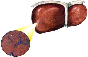 Некроз печени - причины, симптомы, диагностика и лечение