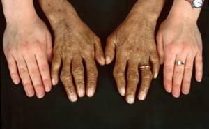Гемохромaтоз печени - причины, симптомы, диагностика и лечение