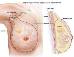 Саркома молочной железы - причины, симптомы, диагностика и лечение