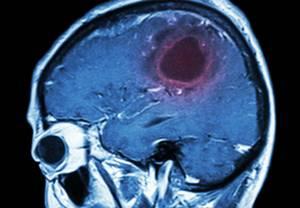 Ангиосаркома печени - причины, симптомы, диагностика и лечение