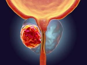 Прогнозы при раке предстательной железы ii степени