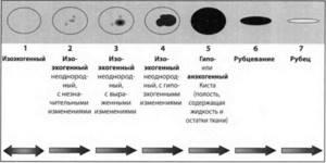 Изоэхогенное образование яичника: что это такое, причины