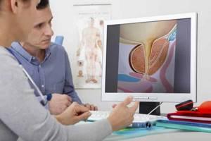 Реактивный гепатит - причины, симптомы, диагностика и лечение