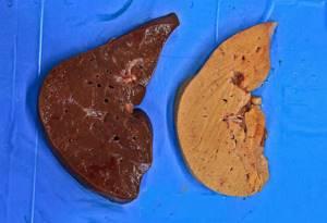Амилоидоз печени: лечение, симптомы, причины, профилактика, диагностика