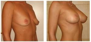 Гипомастия молочной железы: причины, симптомы и лечение