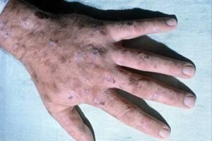 Порфирия: виды, причины, признаки, симптомы и лечение