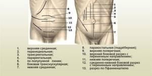 Лапаротомия в гинекологии: что это и как проводится
