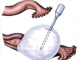 Цистэктомия яичника: что это, способы проведения, последствия