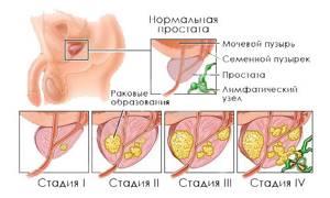 Чем опасна аденома простаты или предстательной железы у мужчин