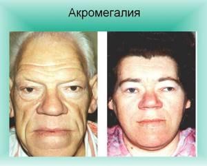 Аденома и микроаденома гипофиза: симптомы и лечение