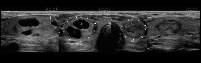 Фокальные изменения щитовидной железы: причины и лечение