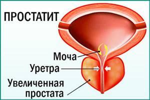 Лечение простатита чесноком в домашних условиях