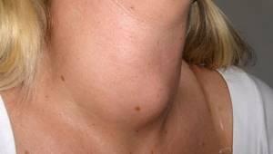 Узел щитовидной железы при нормальных гормонах – это болезнь или нет?