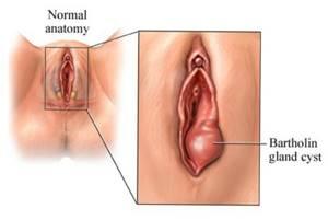 Где находятся бартолиновые железы и их функции
