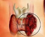 Анапластический рак щитовидной железы - причины, симптомы, диагностика и лечение
