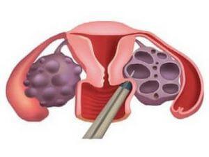Биопсия яичников у женщин: что это, как проводится, результаты