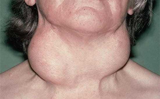 ХАИТ щитовидной железы - что это такое