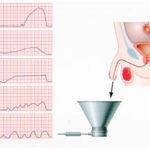 ДГПЖ 1 степени — что это такое и как лечится: симптомы и лечение