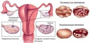 Дриллинг яичников: что это такое, способы, восстановление