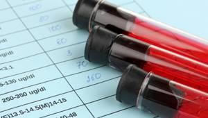 За что отвечает адренокортикотропный гормон (АКТГ)