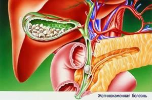 Хронический калькулезный панкреатит: что это такое - лечение, диета, операция
