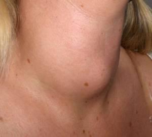 Диффузные изменения щитовидной железы: симптомы и лечение