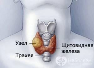 Диффузно-узловая гиперплазия щитовидной железы: лечение и симптомы