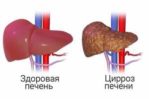 Что такое фиброз поджелудочной железы: симптомы, лечение и прогноз