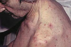 Цирроз печени: симптомы у мужчин и женщин