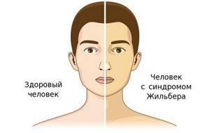 Синдром Жильбера - что это такое простыми словами