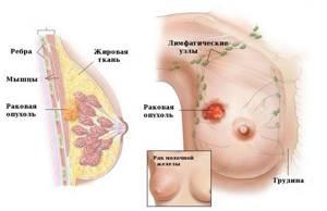 Карцинома молочной железы: классификация, факторы риска, диагностика, лечение