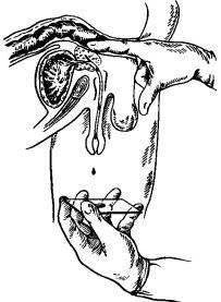 10 способов медицинского анализа простаты у мужчин