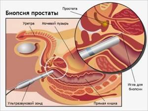 Биопсия простаты - все последствия и осложнения после биопсии предстательной железы