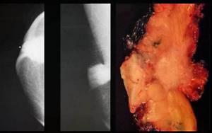 Рак Педжета: симптомы патологии молочной железы, стадии, лечение, прогноз