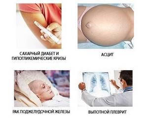 Паренхиматозный панкреатит: симптомы, лечение, диета