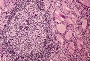 Болезнь Хашимото: причины появления, симптомы, особенности лечения