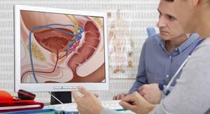 Есть ли взаимосвязь аденомы и рака предстательной железы?