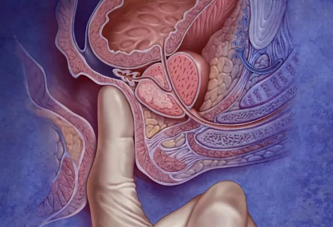 Методы диагностики рака предстательной железы – как определить рак простаты