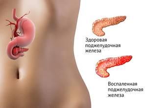 Боли в поджелудочной железе: симптомы, характер боли и причины