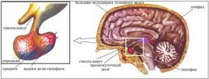 Увеличение гипофиза головного мозга: причины и симптомы