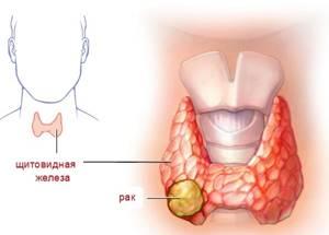 Папиллярный рак щитовидной железы - причины, симптомы, диагностика и лечение