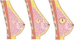 Кистозная мастопатия молочных желез: что это такое, лечение, народные методы, средства в домашних условиях