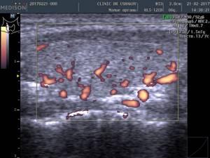 Причины усиленного кровотока в щитовидной железе и что это значит?