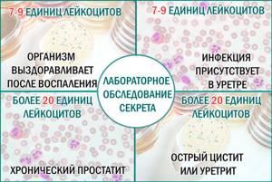 Лейкоциты в секрете простаты: норма, причины повышения, терапия