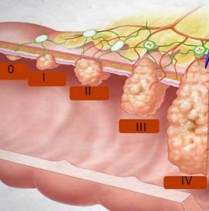 Все 3 онкомаркера щитовидной железы и их нормы
