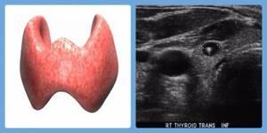 Эхогенность щитовидной железы повышена, что это значит