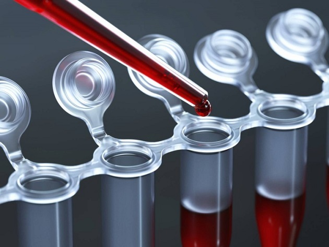 Анализ на мелатонин - норма и патологии